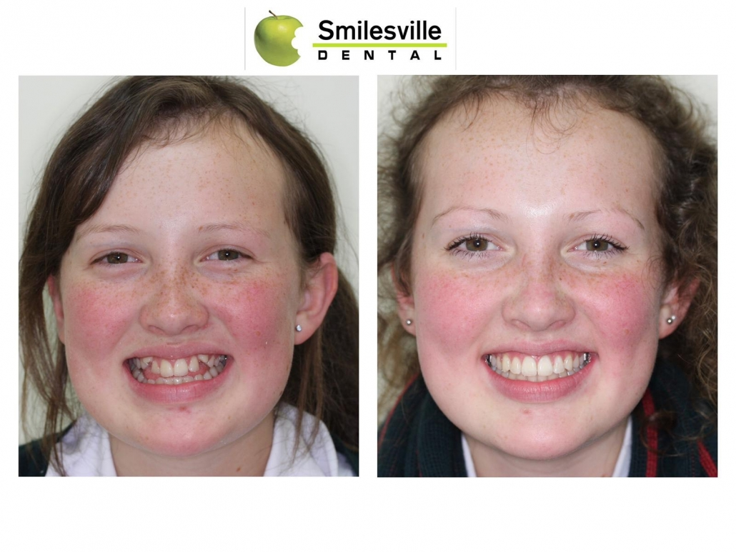 Invasalign Orthodontics Christchurch