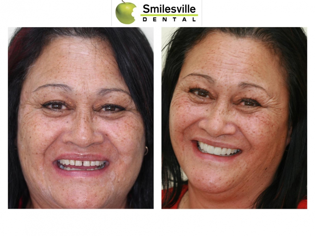 Dentists Christchurch, Invisalign Treatment Christchurch