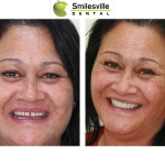 Dentists Christchurch Orthodontics and Invisalign Treatments