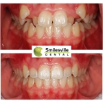 Dentists Christchurch Orthodontics and Invisalign services.