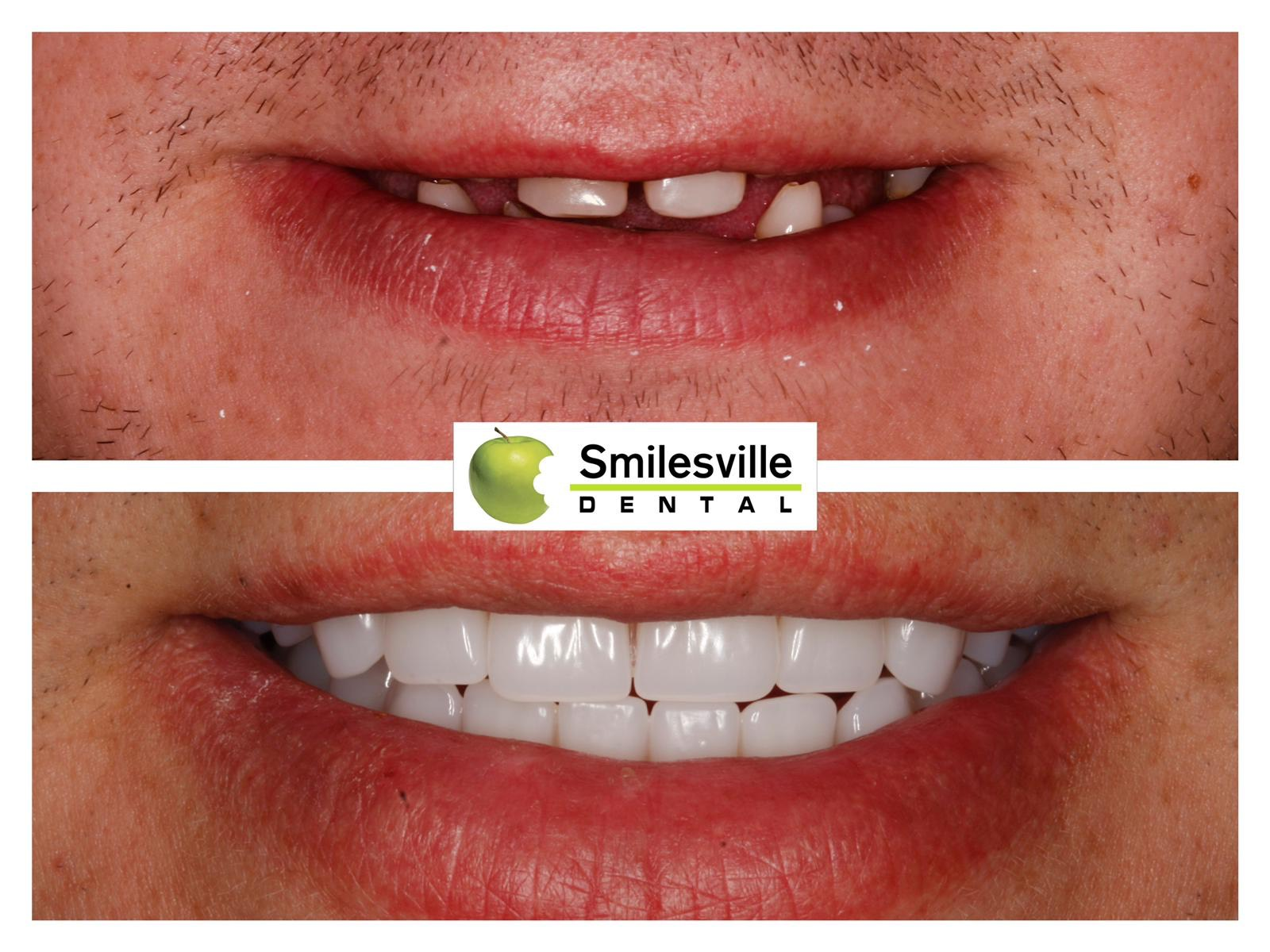 Christchurch orthodontics and Invisalign services.