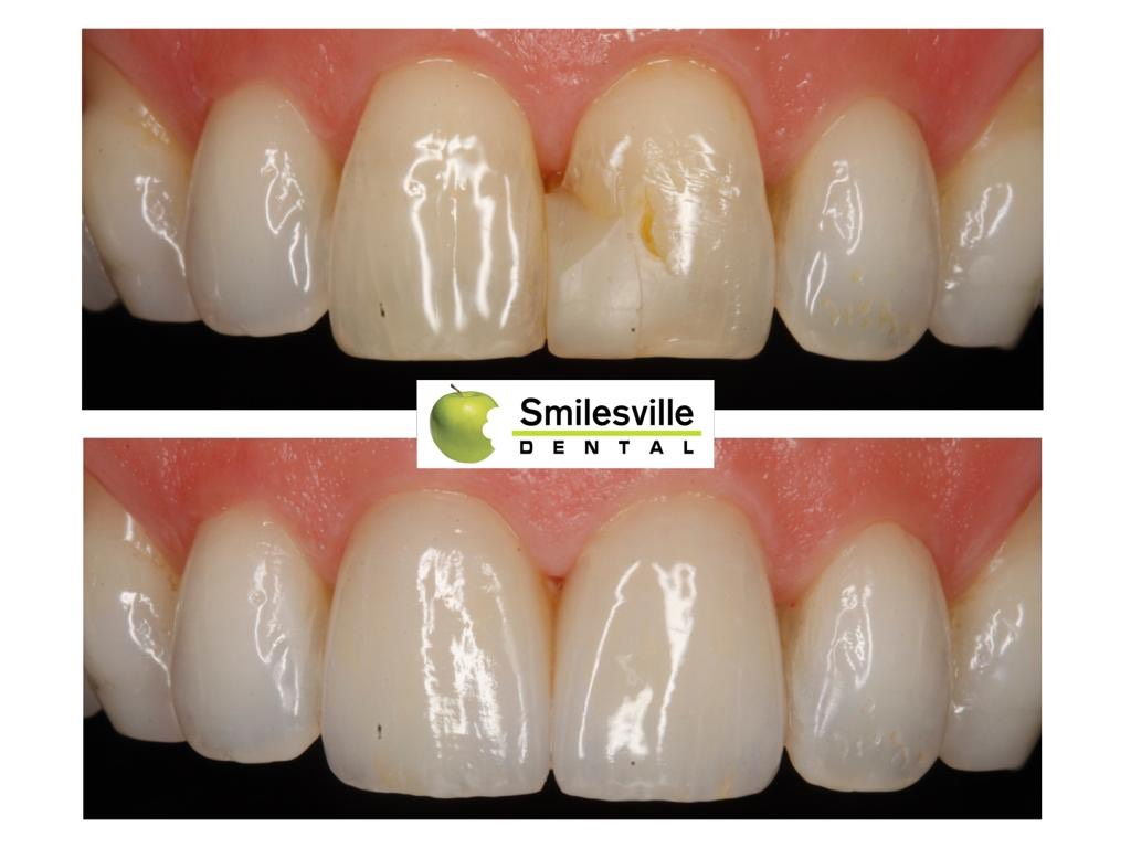 Dentists Christchurch Smilesville Dental Riccarton Christchurch