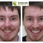 Veneers, crowns, bridges, implants and cosmetic fillings Smileville Dental Christchurch