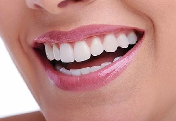 Zoom™ Whitening Dentist Christchurch